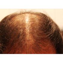 Toppik Fibra Capilar Nuevo Tamaño 27.5gr.cabello Al Instante
