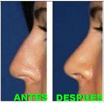 Nariz Bonita(pretty Nose)naris Respingada(8 Tamaños)original